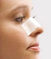 http://uface.ir/ | مراقبت بعداز عمل جراحی بینی|مراقبت بعداز عمل جراحی|مراقبتهای بعد از عمل جراحی بینی|مراقبت از بینی|بینی|عمل زیبایی بینی|بینی شما|زیبایی|آرایش|مراقبت از بینی عمل شده|بینی عمل شده